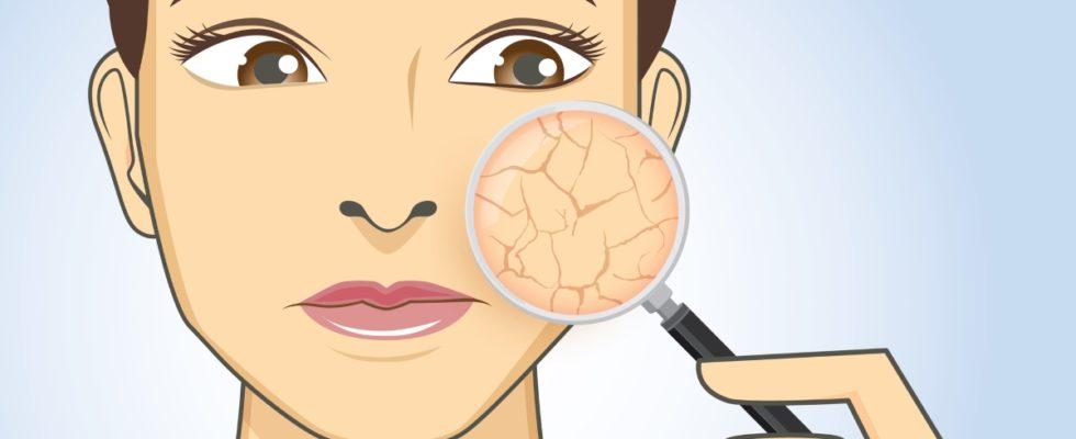 Folgen trockener Haut